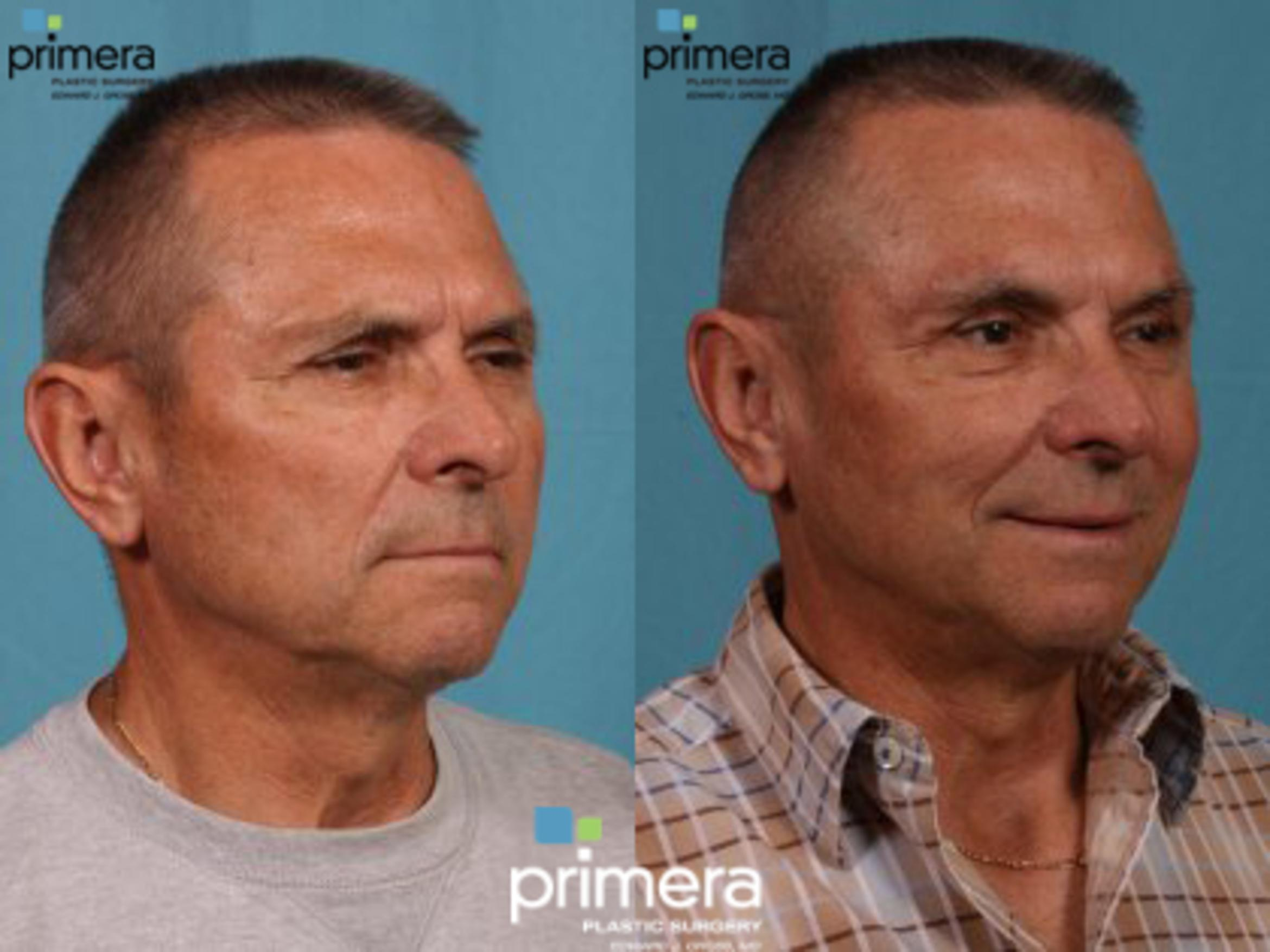 Brow Lift Before & After Photo | Orlando, Florida | Primera Plastic Surgery
