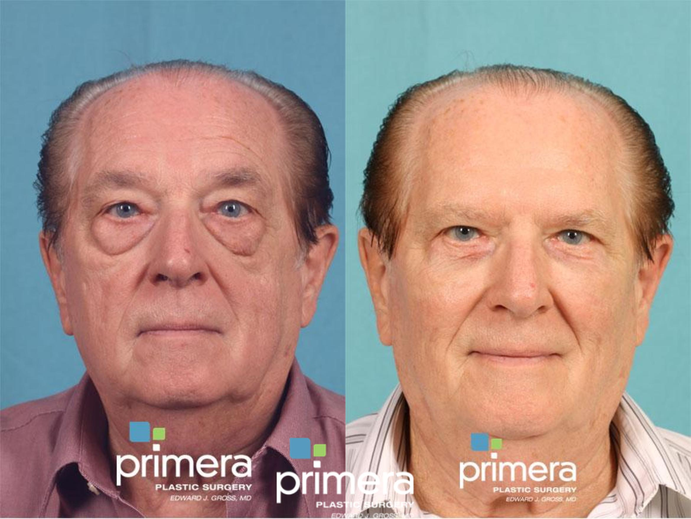 Restylane® Before & After Photo | Orlando, Florida | Primera Plastic Surgery