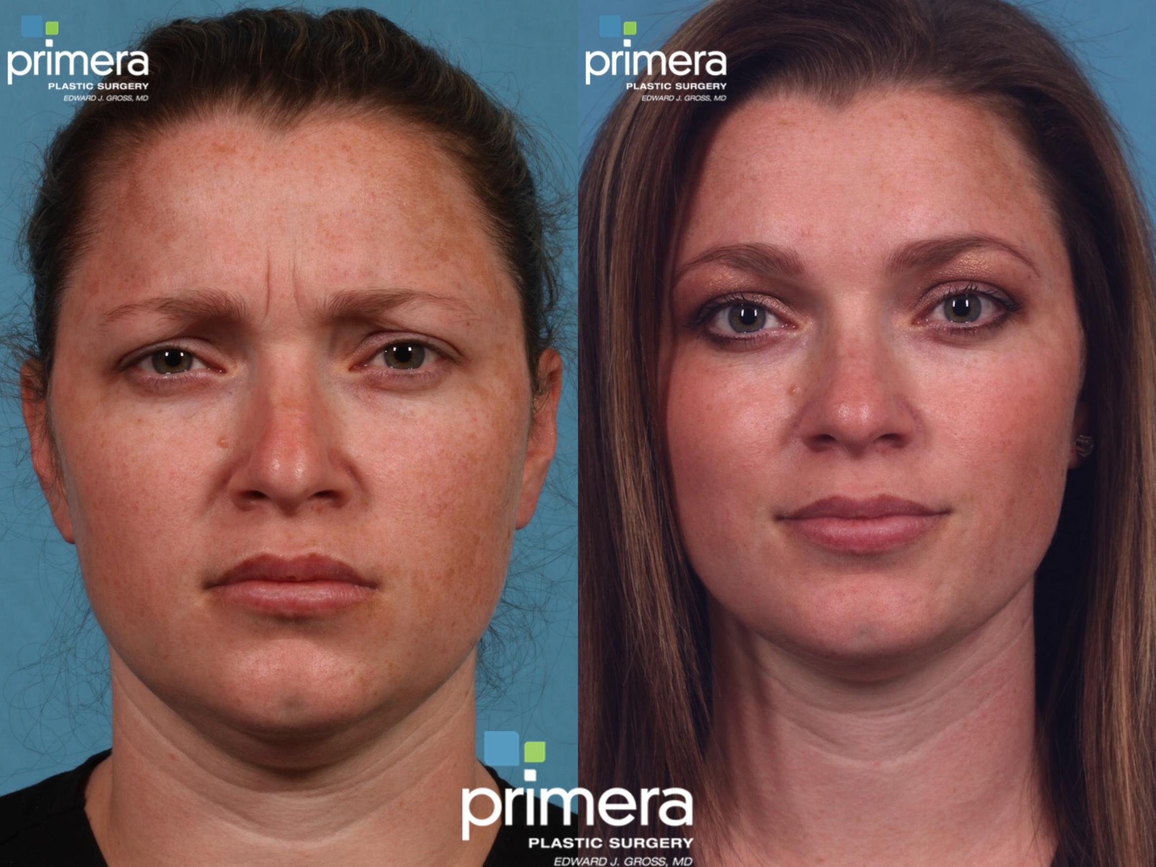 Dysport® Before & After Photo | Orlando, Florida | Primera Plastic Surgery