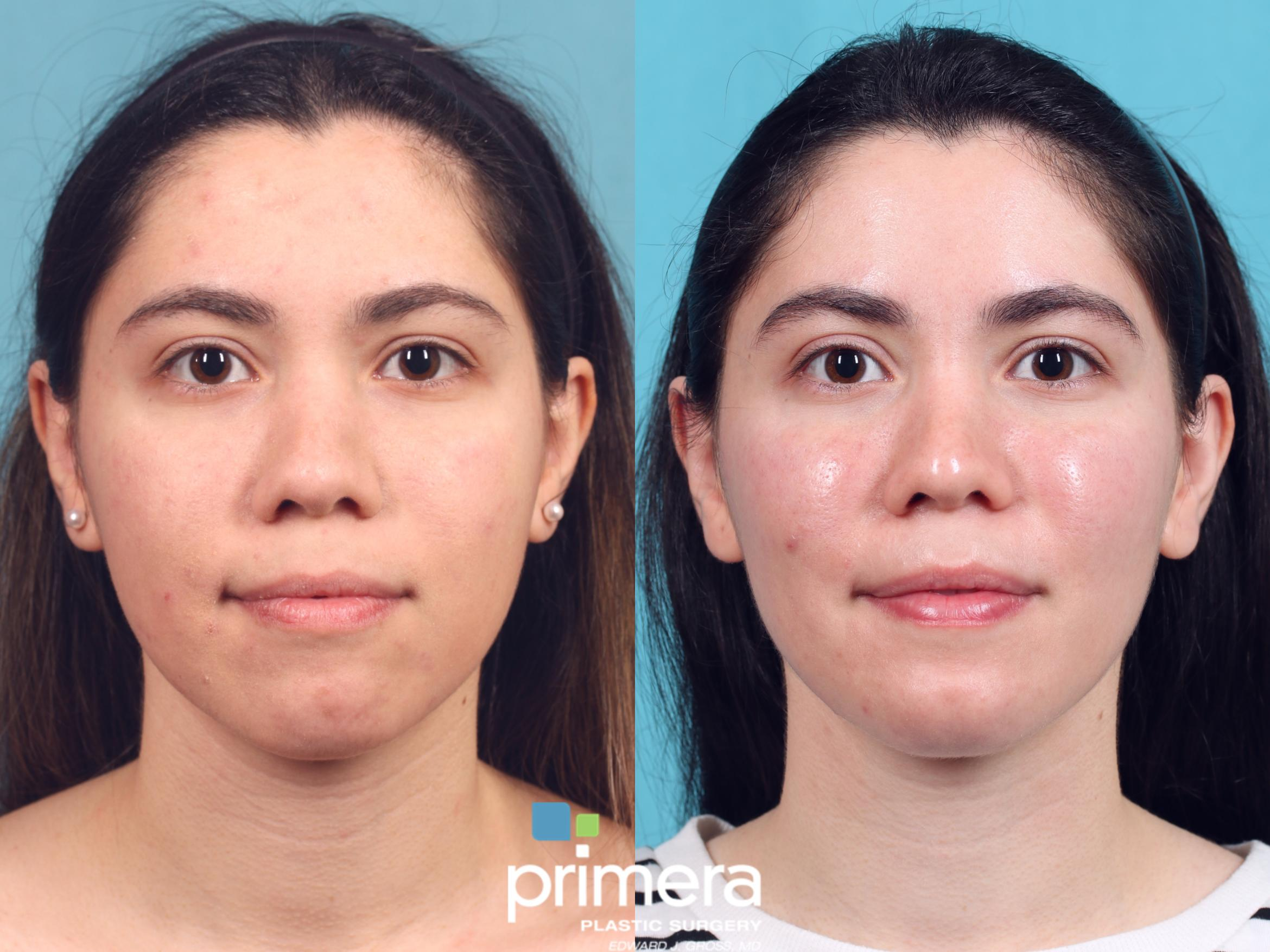 Buccal Fat Removal Before & After Photo | Orlando, Florida | Primera Plastic Surgery