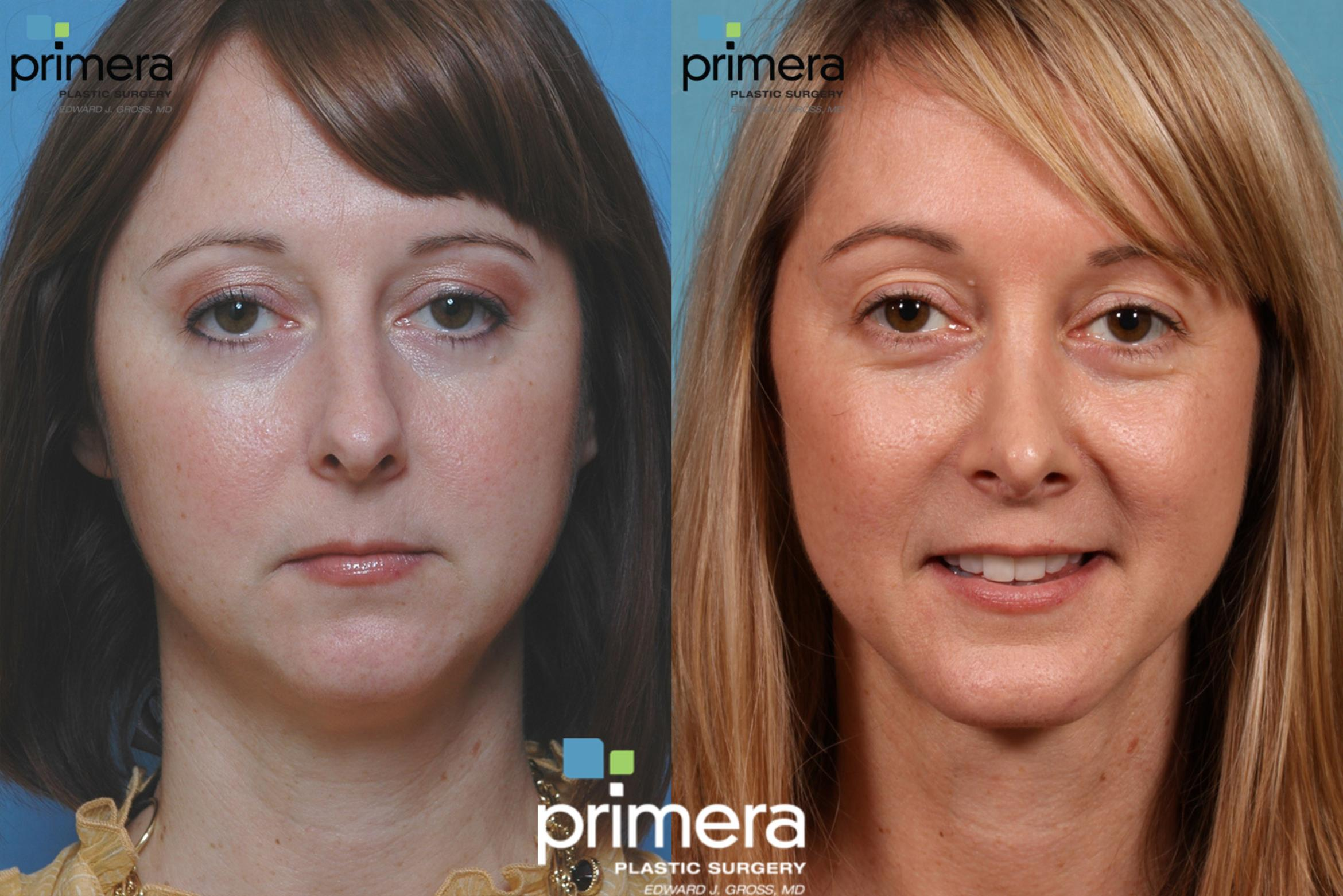 Chin & Cheek Implant Before & After Photo | Orlando, Florida | Primera Plastic Surgery