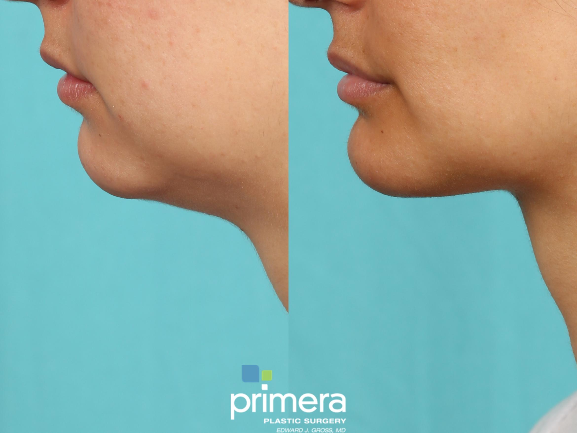 Submentoplasty (Chin Tuck) Before & After Photo | Orlando, Florida | Primera Plastic Surgery