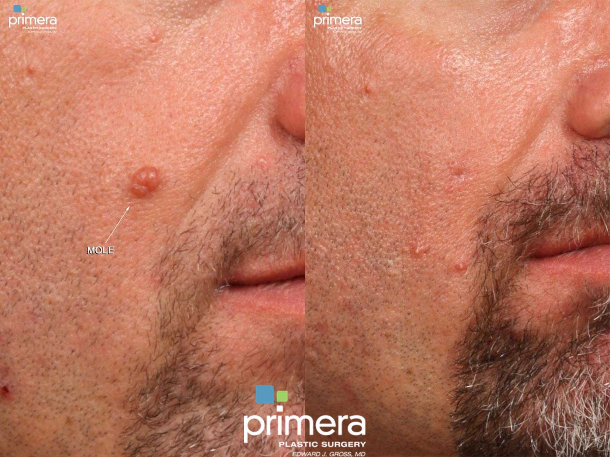 Cyst Removal Before & After Photo | Orlando, Florida | Primera Plastic Surgery