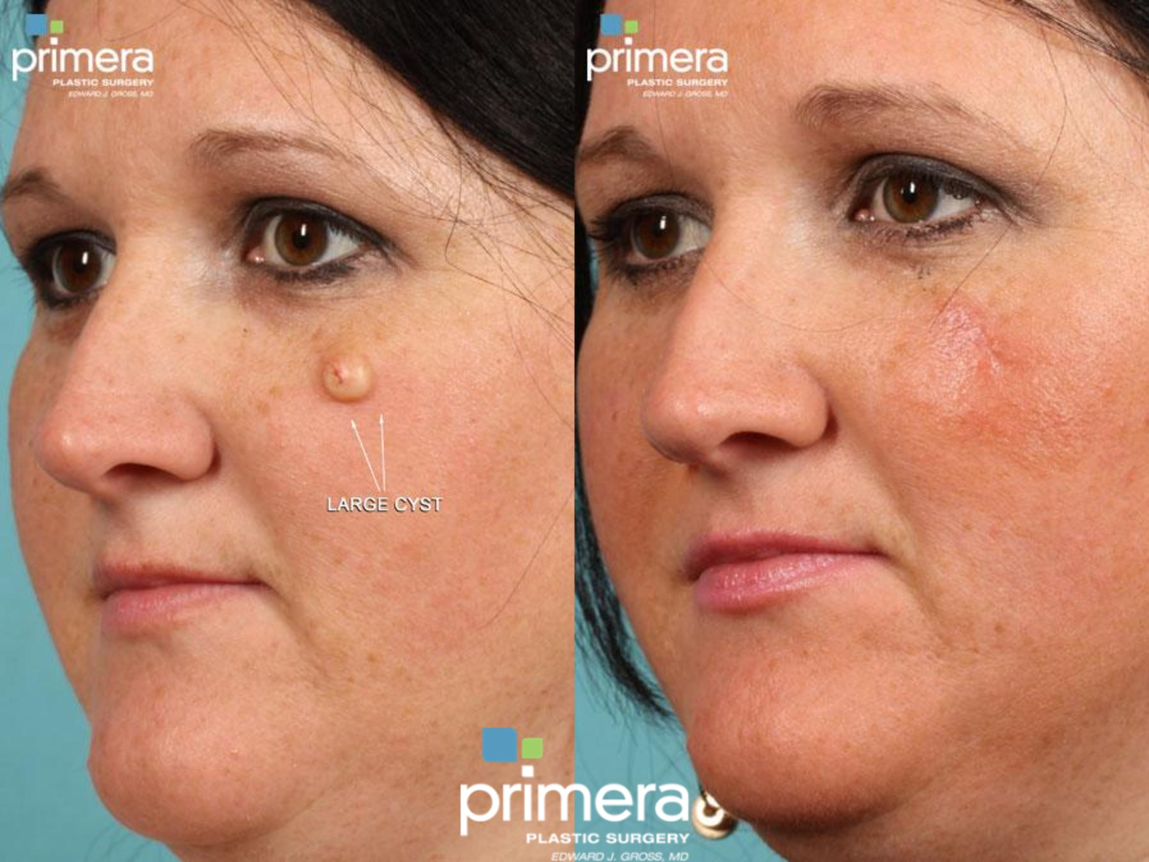 Facial Scarring Before & After Photo | Orlando, Florida | Primera Plastic Surgery