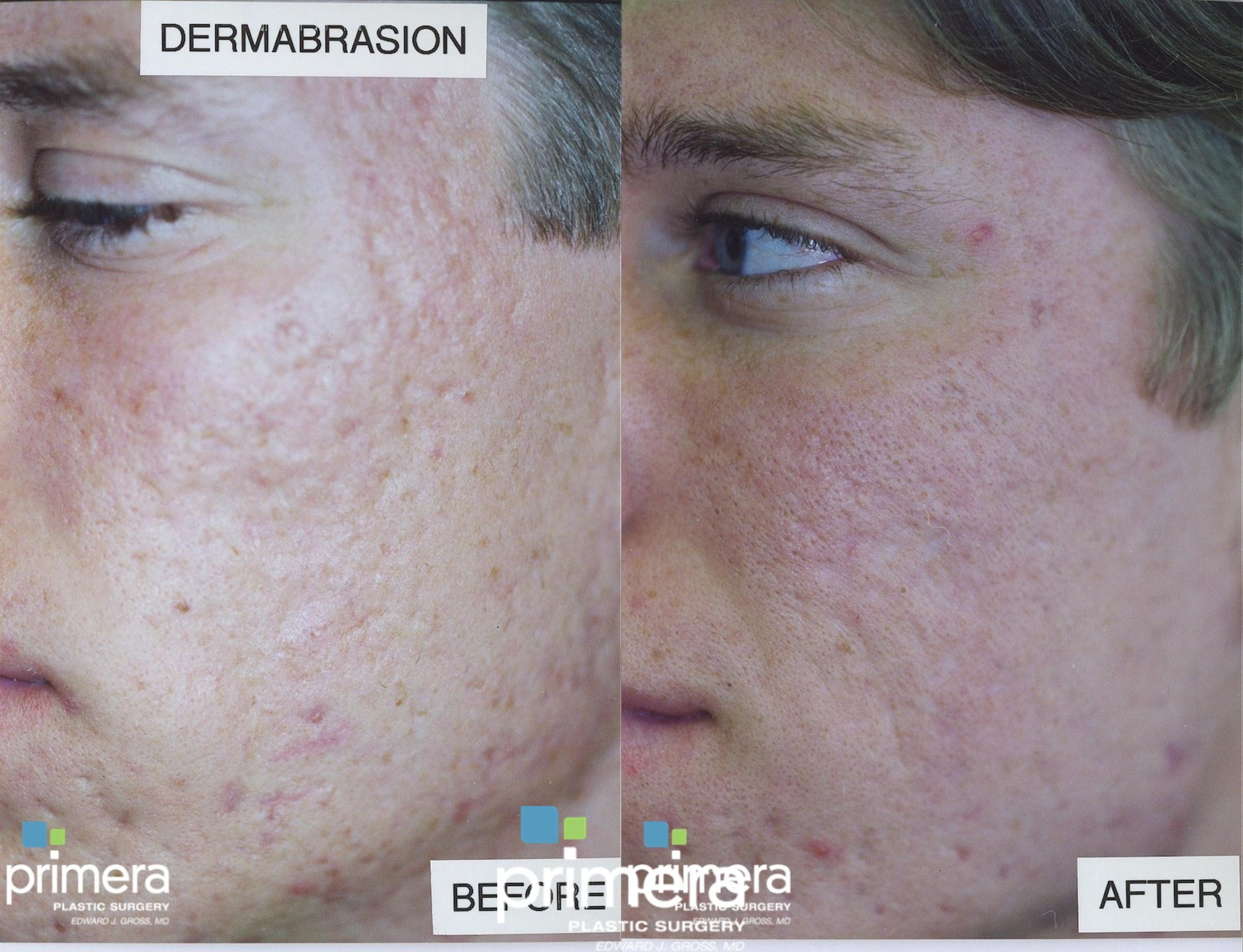 Dermabrasion Before & After Photo | Orlando, Florida | Primera Plastic Surgery
