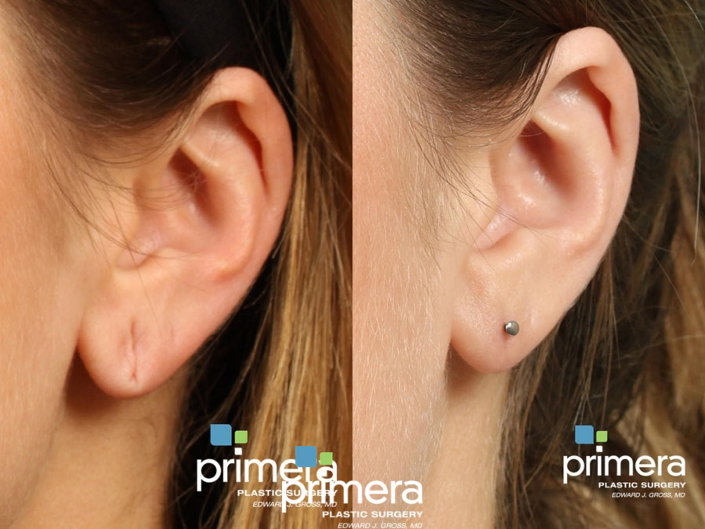 Ear Surgery (Otoplasty) Before & After Photo | Orlando, Florida | Primera Plastic Surgery
