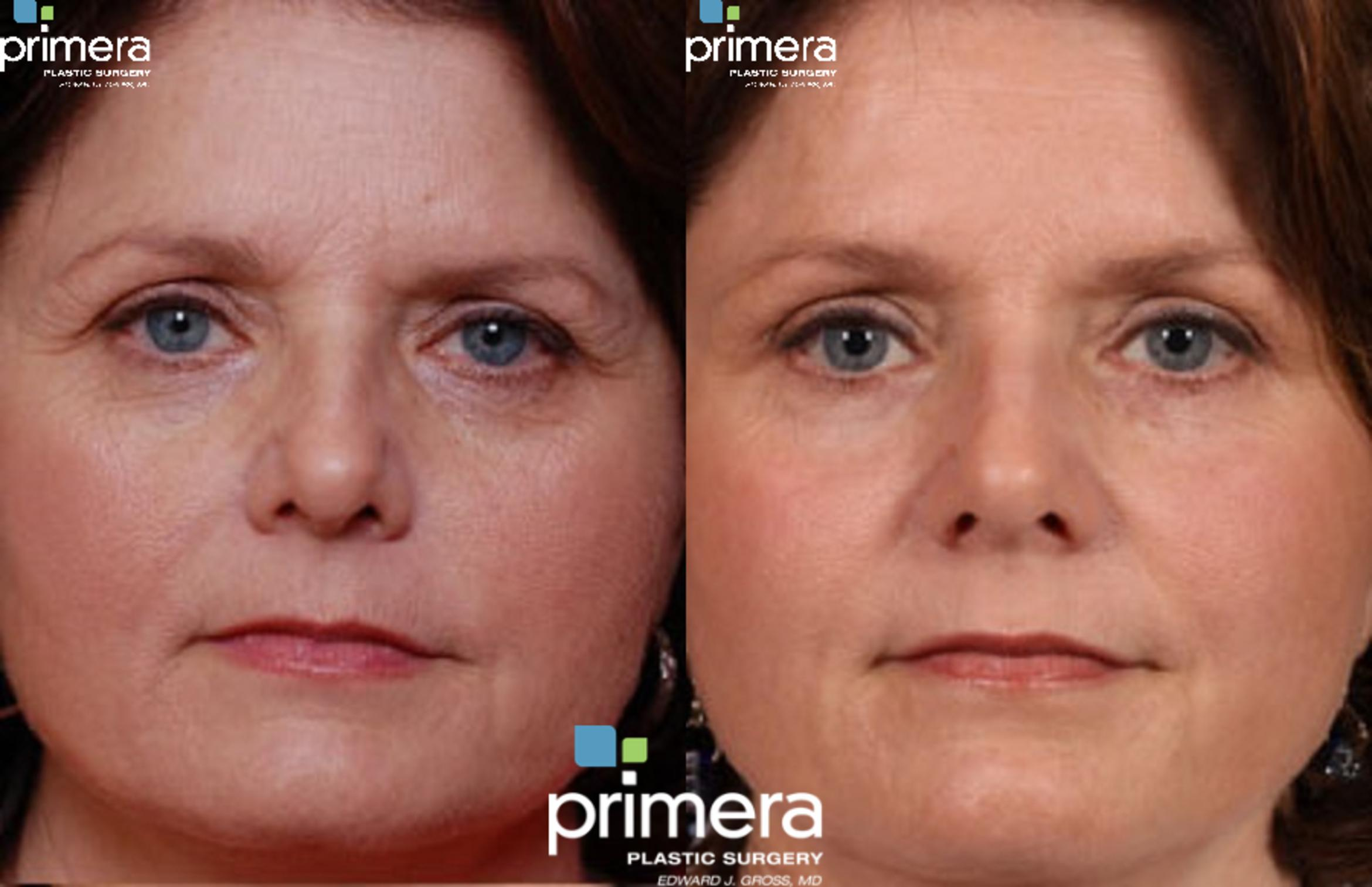 Endoscopic Forehead Lift Before & After Photo | Orlando, Florida | Primera Plastic Surgery