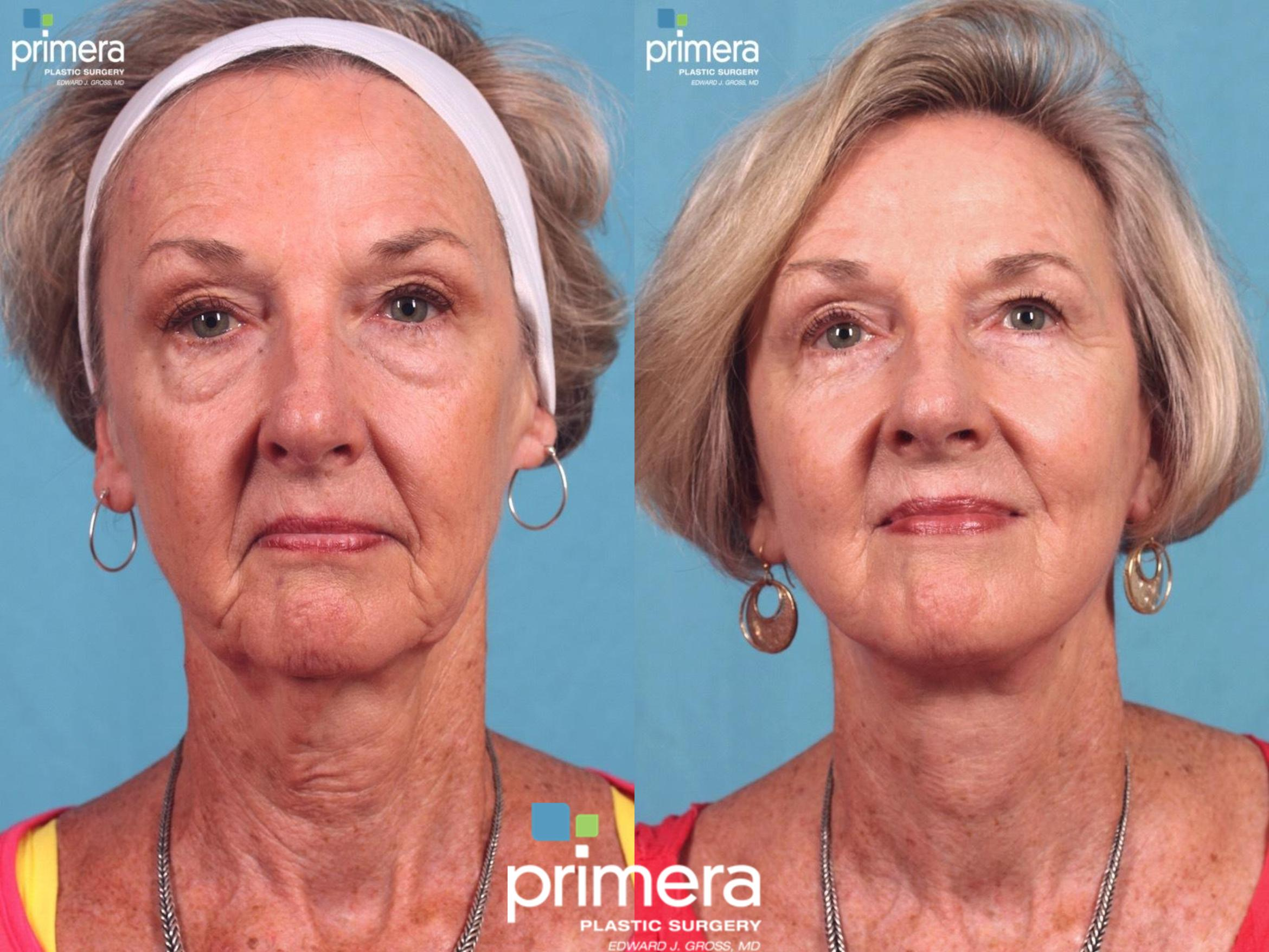 Fat Grafting Before & After Photo | Orlando, Florida | Primera Plastic Surgery