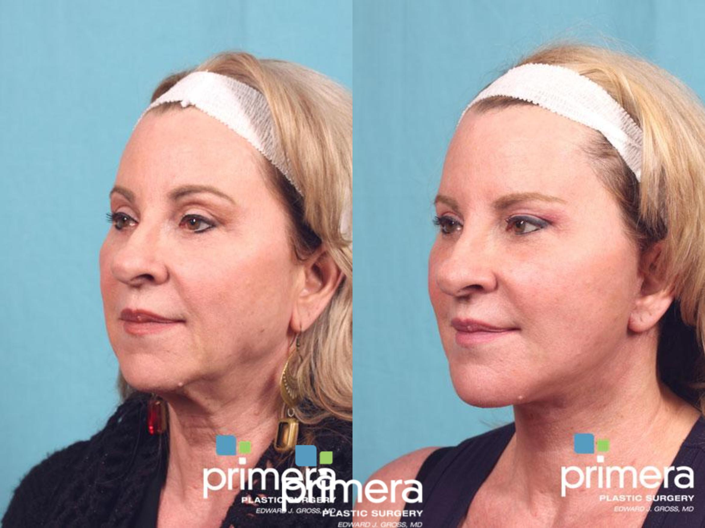 Facelift Before & After Photo | Orlando, Florida | Primera Plastic Surgery