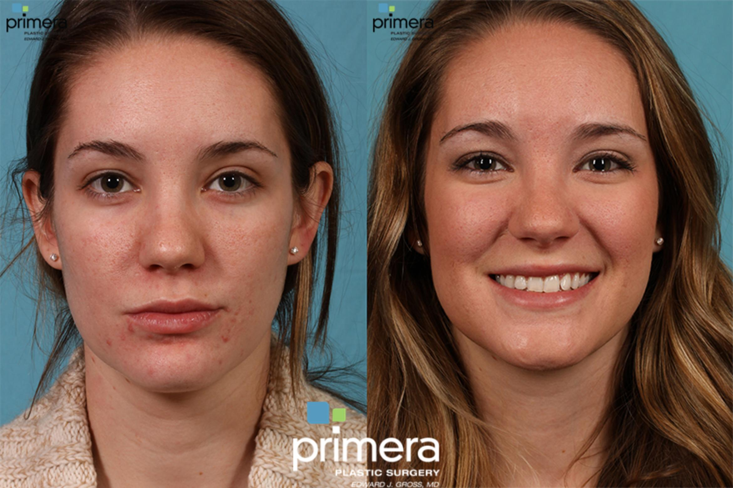 Fraxel® Laser Before & After Photo | Orlando, Florida | Primera Plastic Surgery