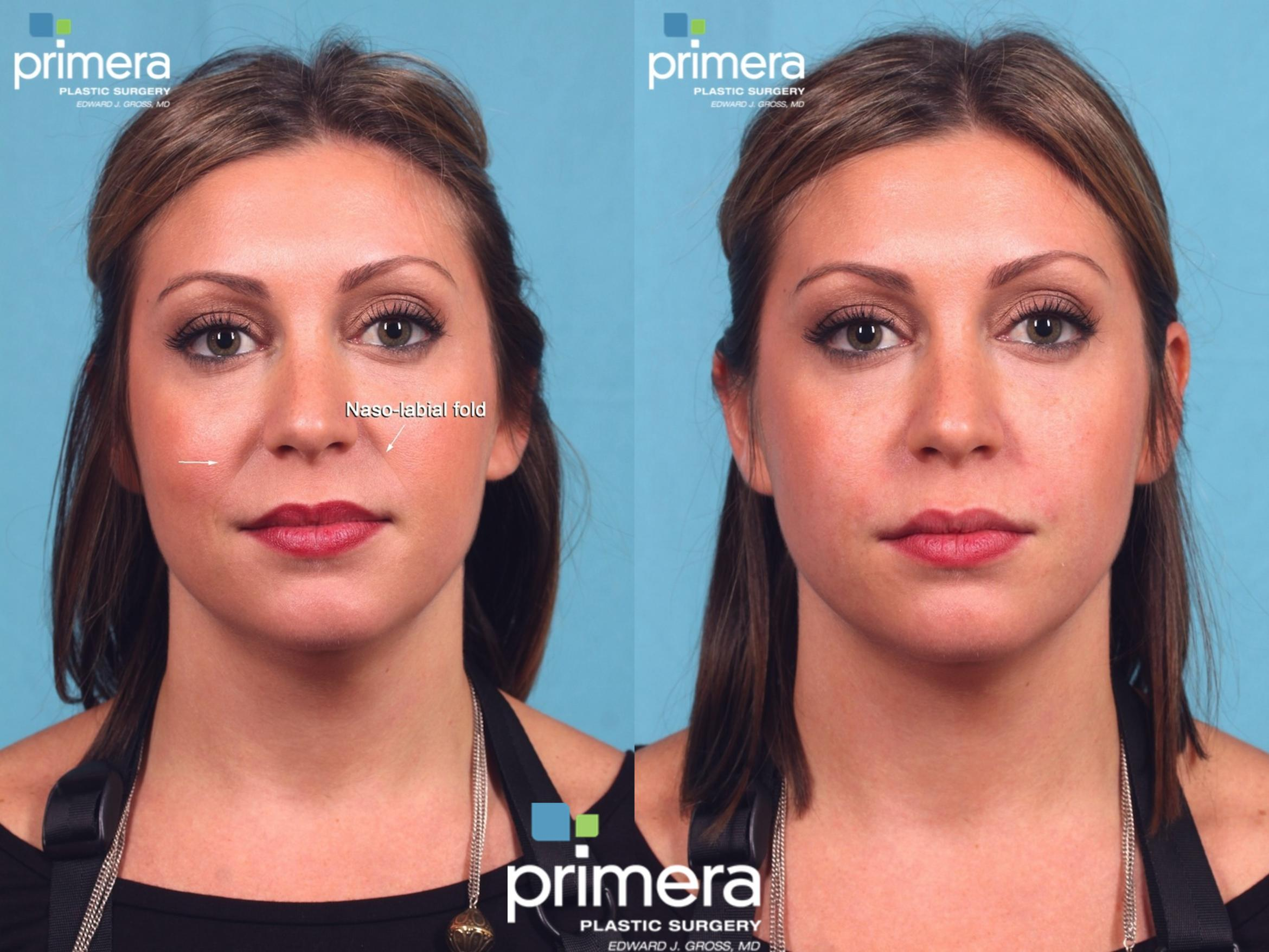 JUVÉDERM® Before & After Photo | Orlando, Florida | Primera Plastic Surgery