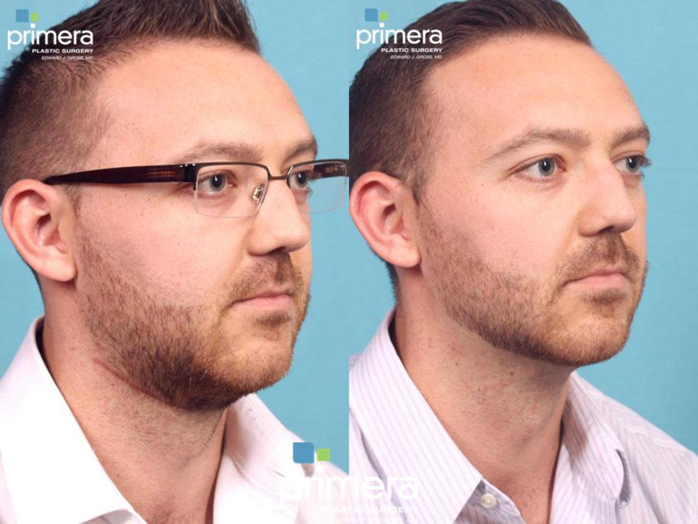Kybella® Before & After Photo | Orlando, Florida | Primera Plastic Surgery