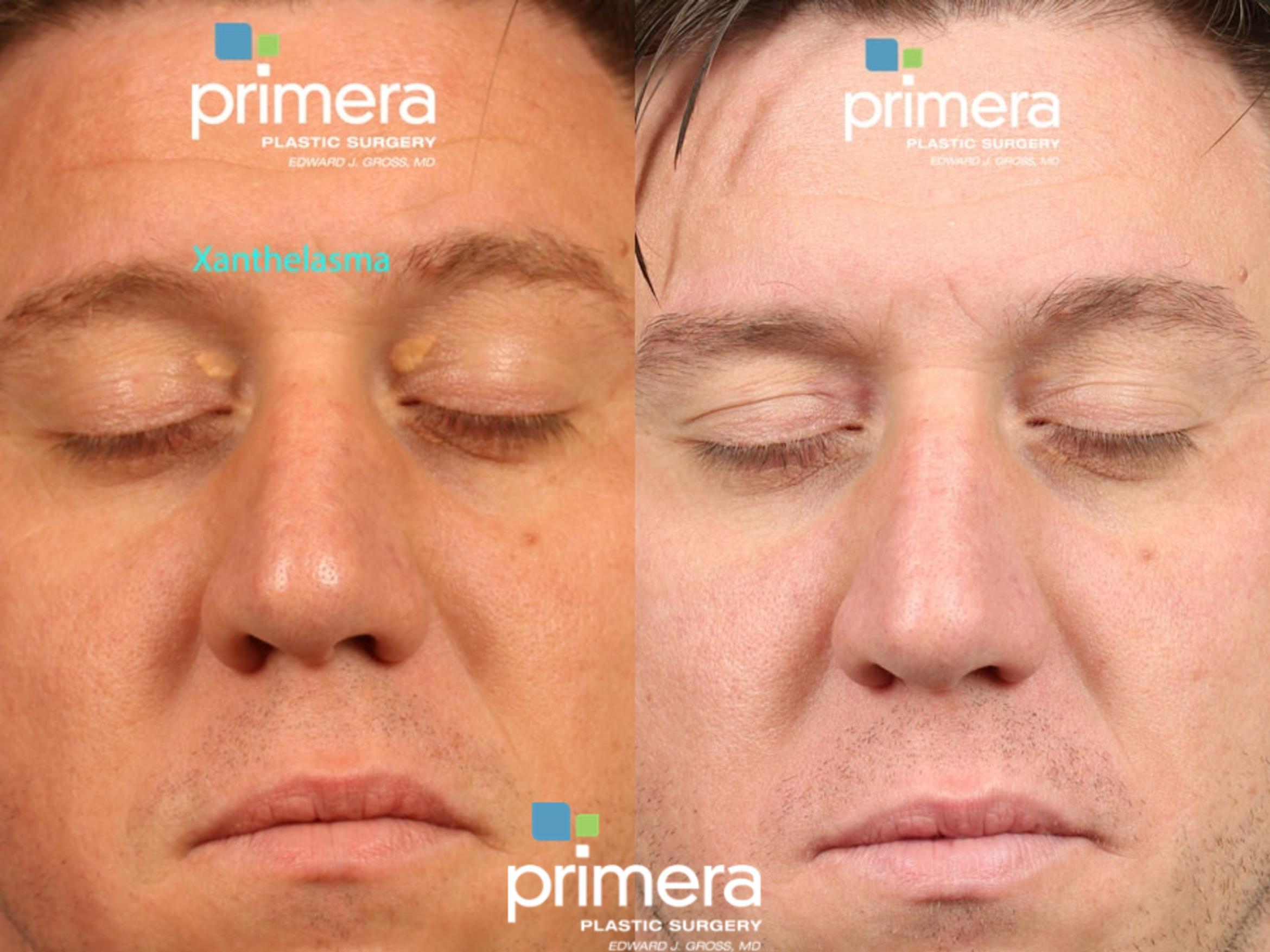 Skin Discoloration Treatment Before & After Photo | Orlando, Florida | Primera Plastic Surgery