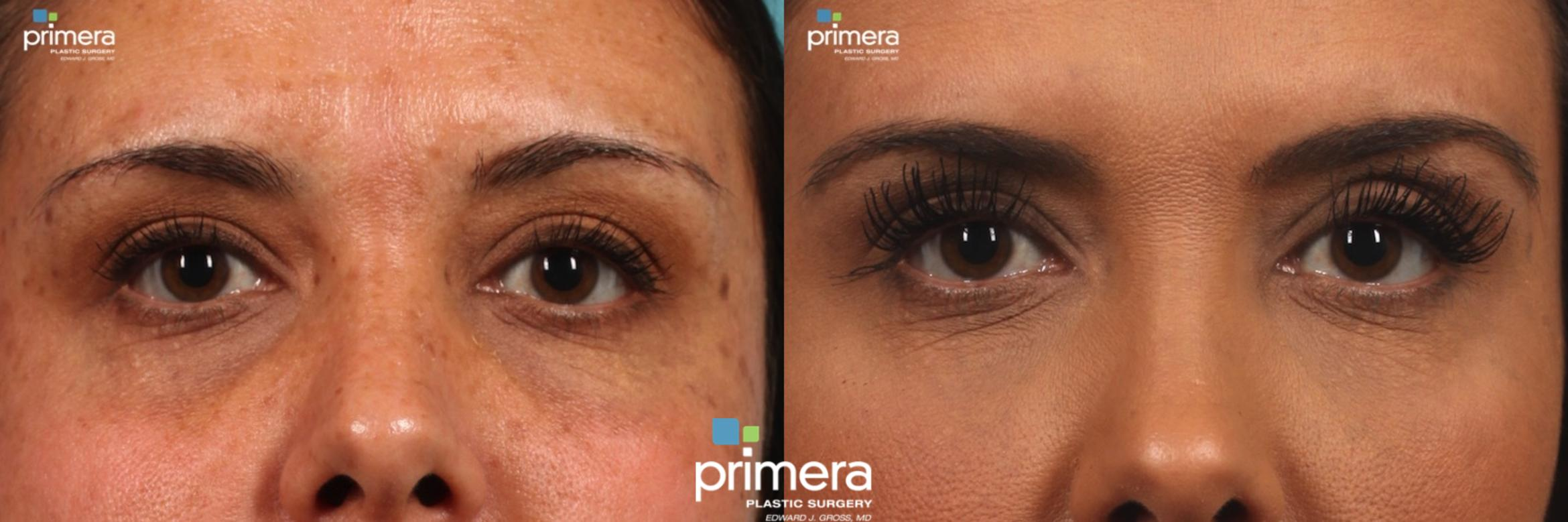 LATISSE® Before & After Photo | Orlando, Florida | Primera Plastic Surgery