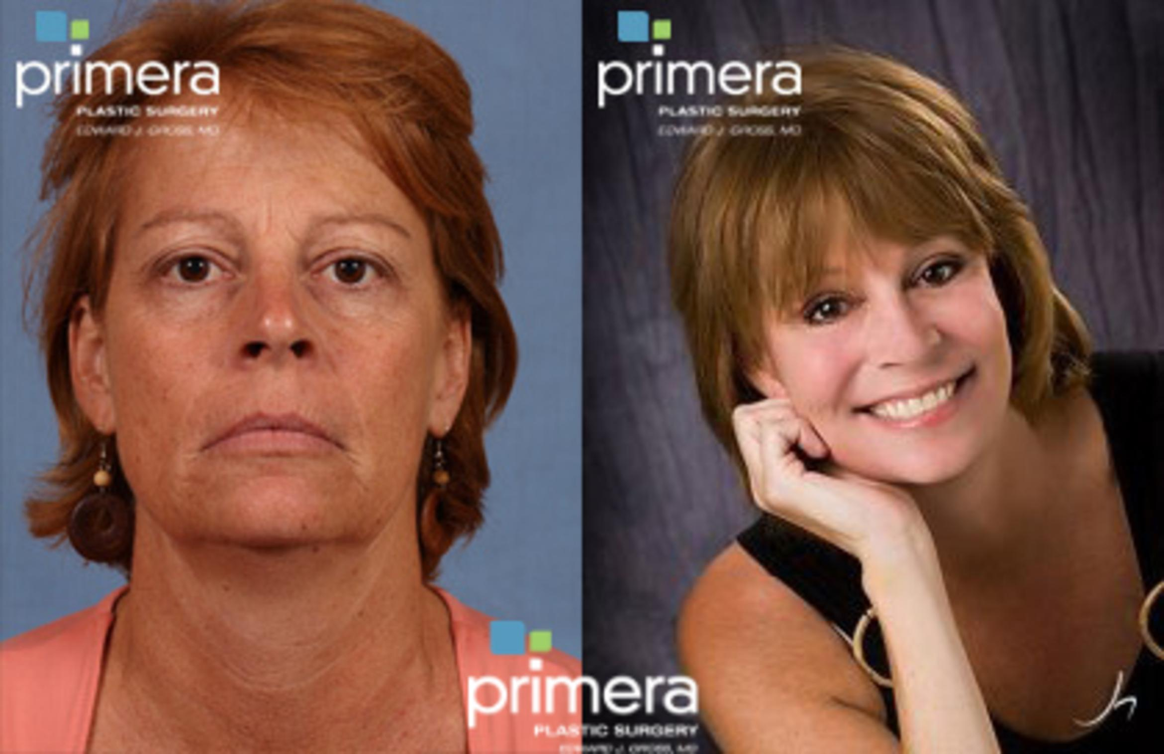 Chemical Peel Before & After Photo | Orlando, Florida | Primera Plastic Surgery