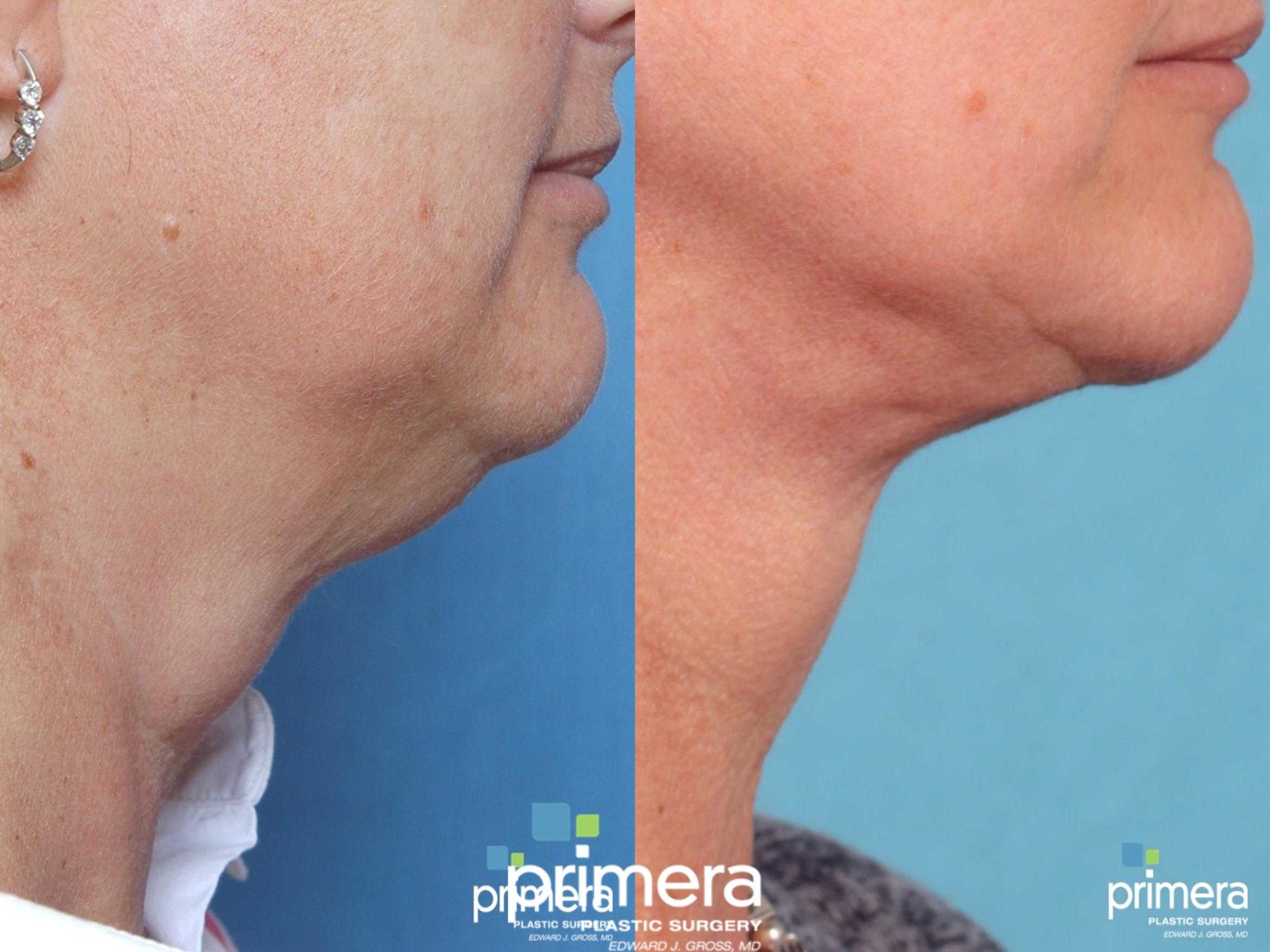 Mini Facelift Before & After Photo | Orlando, Florida | Primera Plastic Surgery