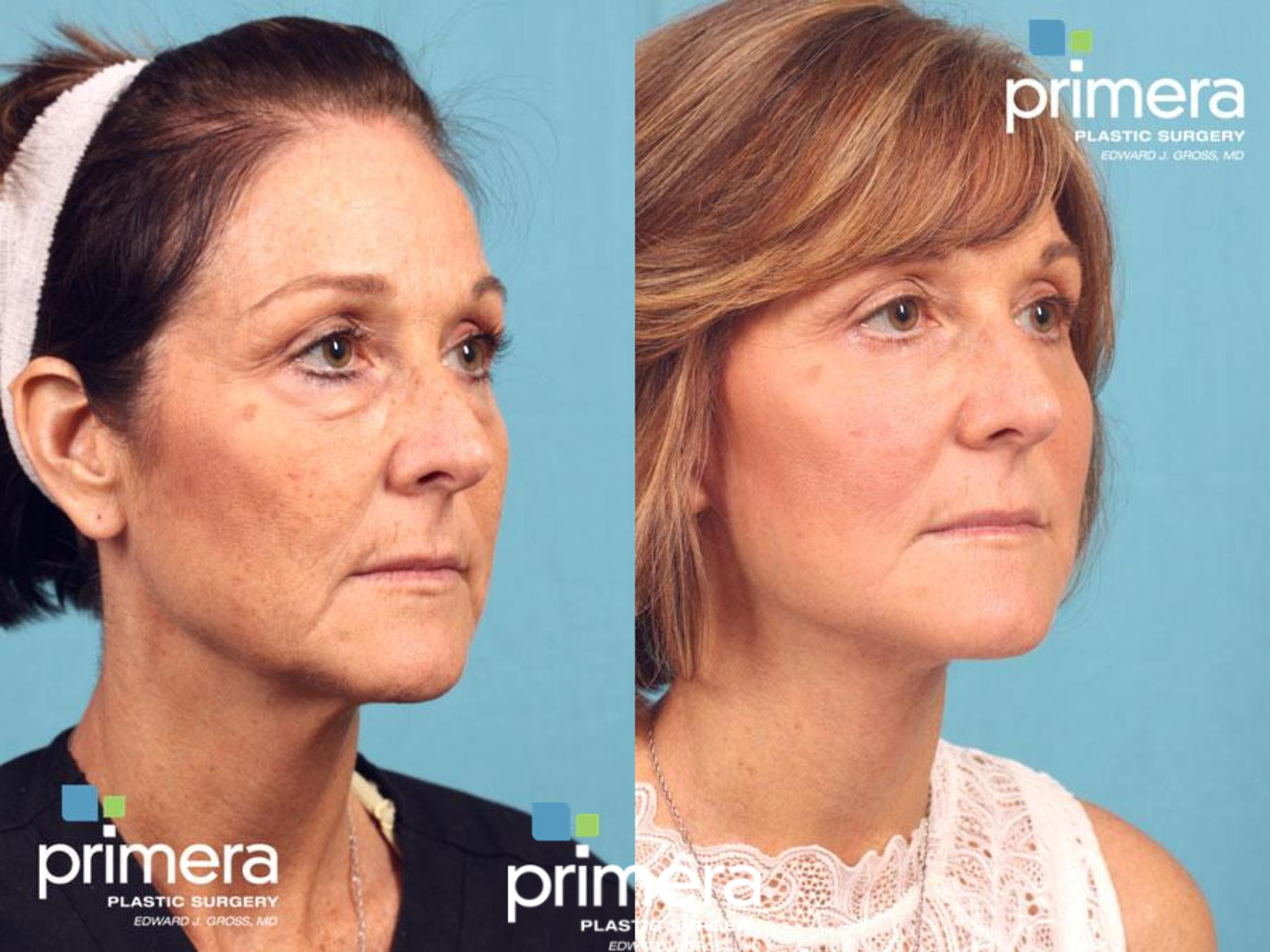 Cynosure Icon® IPL Before & After Photo | Orlando, Florida | Primera Plastic Surgery