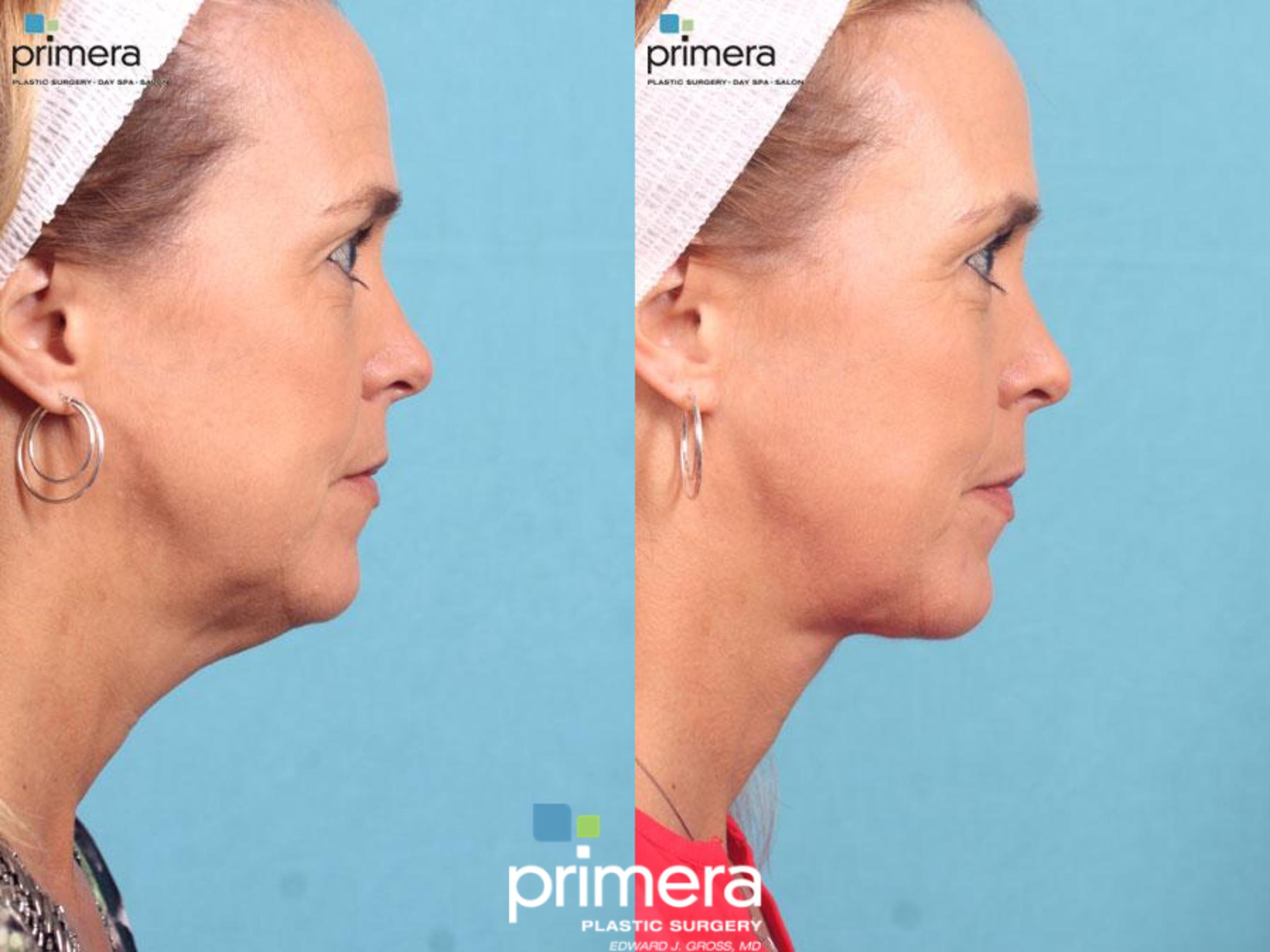 Neck & Face Liposuction Before & After Photo | Orlando, Florida | Primera Plastic Surgery