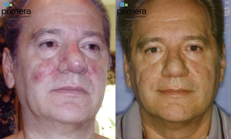 Pulsed Dye Laser Skin Treatments For Orlando Fl Primera Plastic