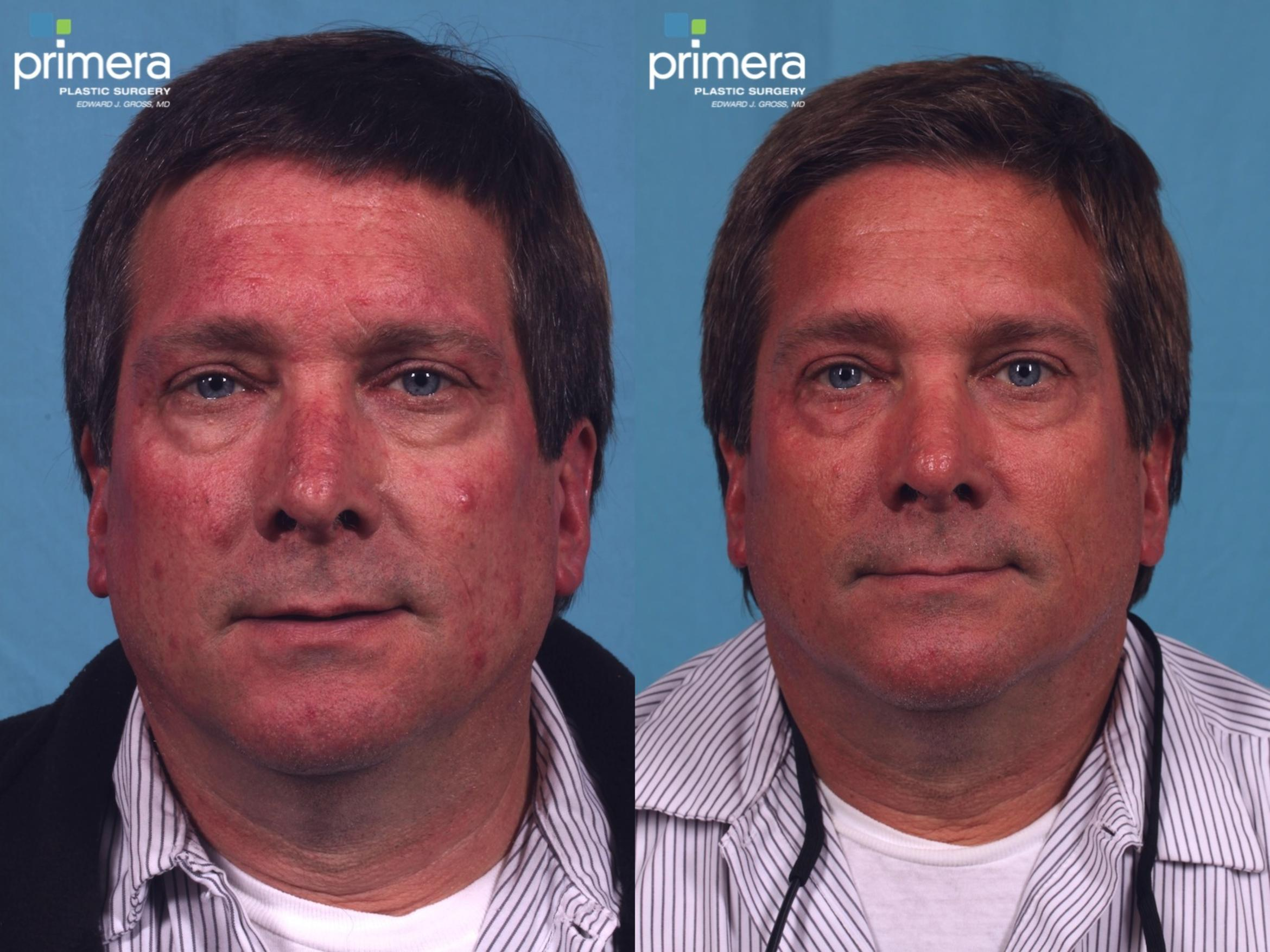 Pulsed Dye Laser (Candela V-Beam) Before & After Photo | Orlando, Florida | Primera Plastic Surgery