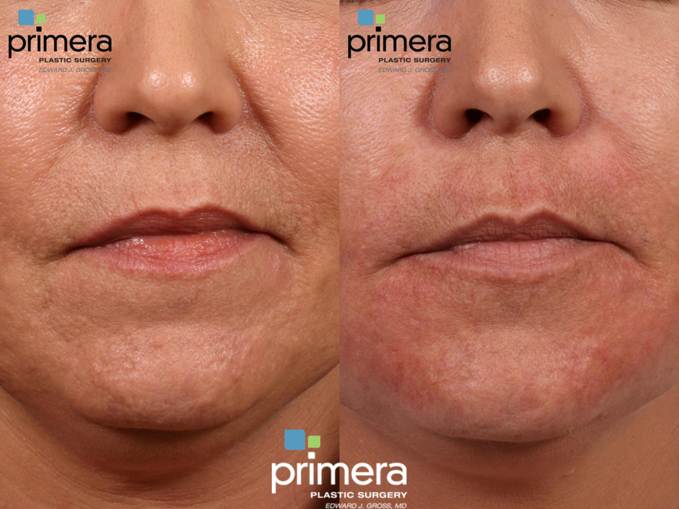 Radiesse® Before & After Photo | Orlando, Florida | Primera Plastic Surgery