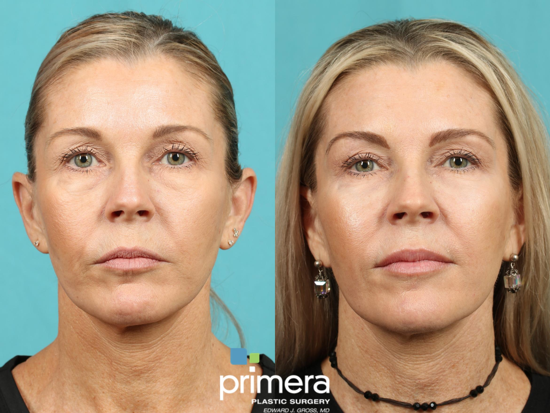 BOTOX® Cosmetic Before & After Photo | Orlando, Florida | Primera Plastic Surgery