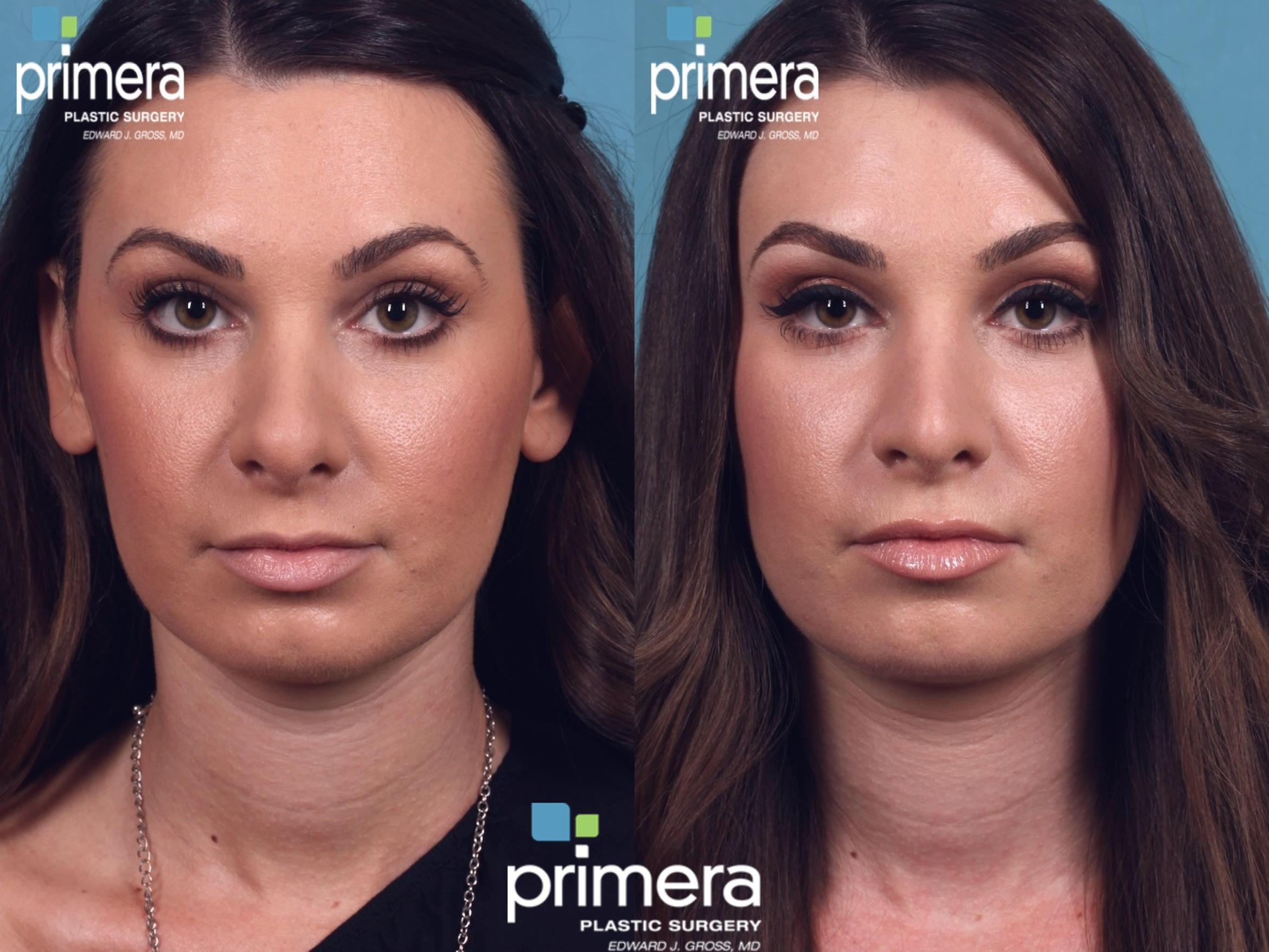 Revision Rhinoplasty Before & After Photo | Orlando, Florida | Primera Plastic Surgery