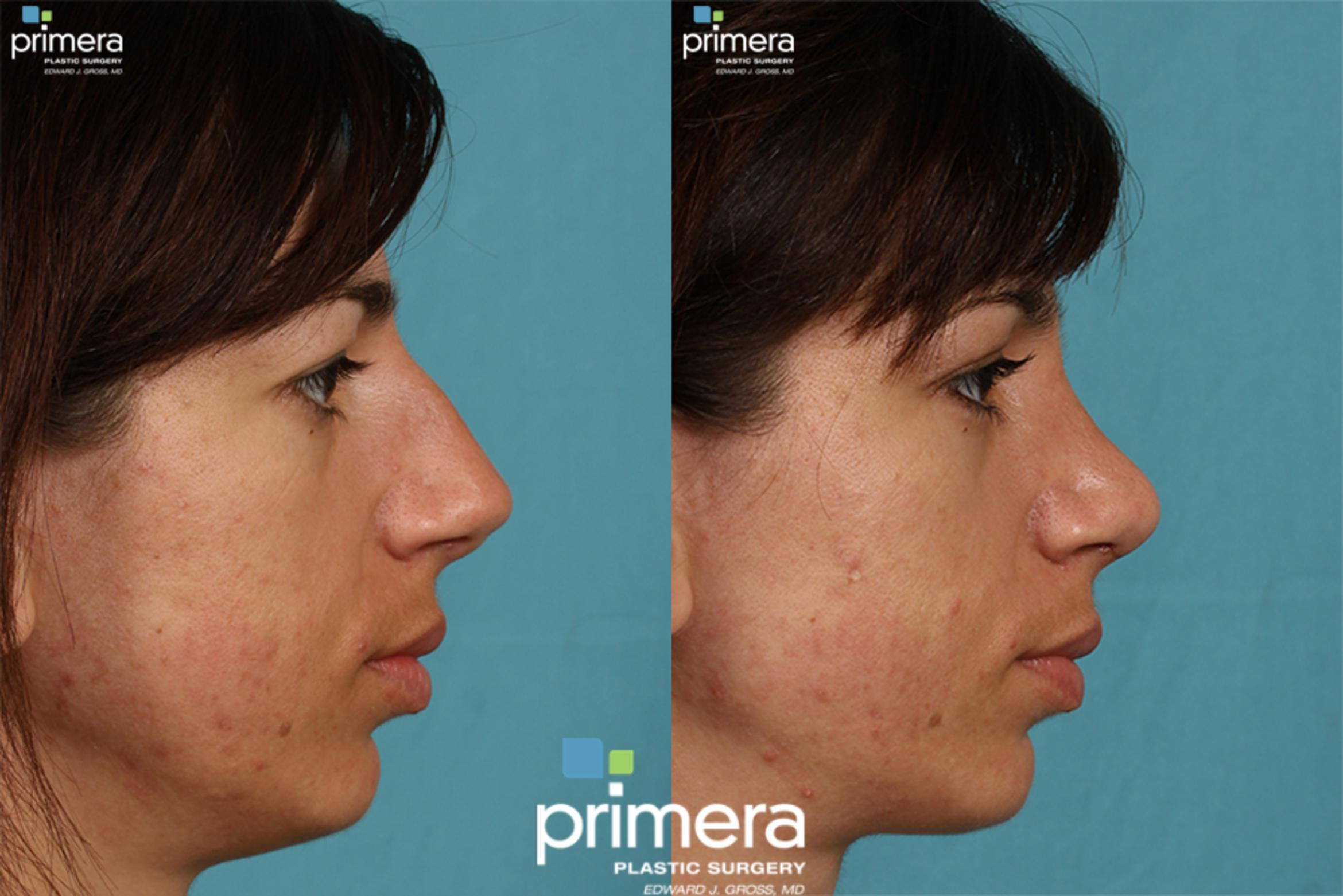 Rhinoplasty Before & After Photo | Orlando, Florida | Primera Plastic Surgery