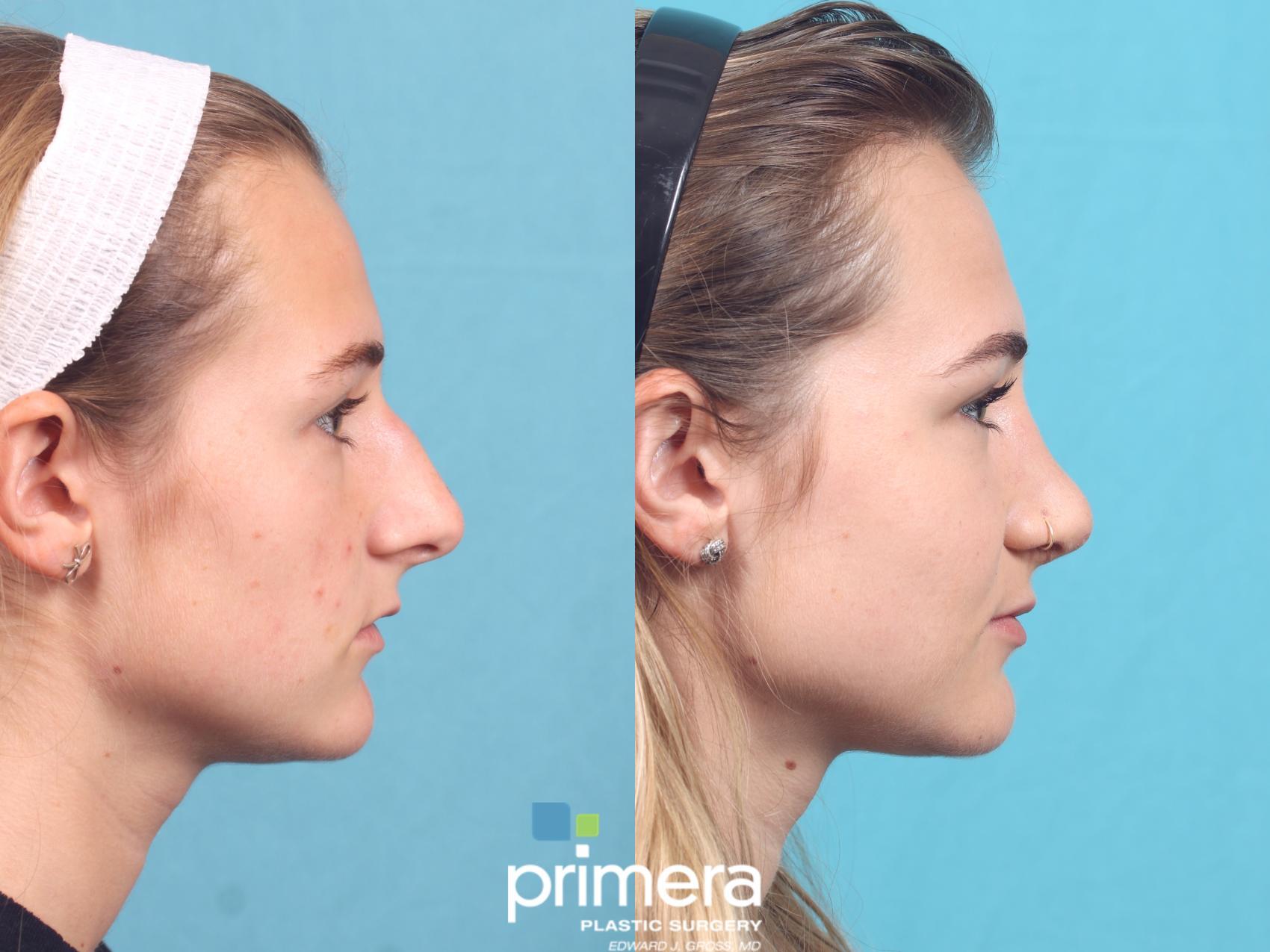 Rhinoplasty For Orlando Fl Primera Plastic Surgery