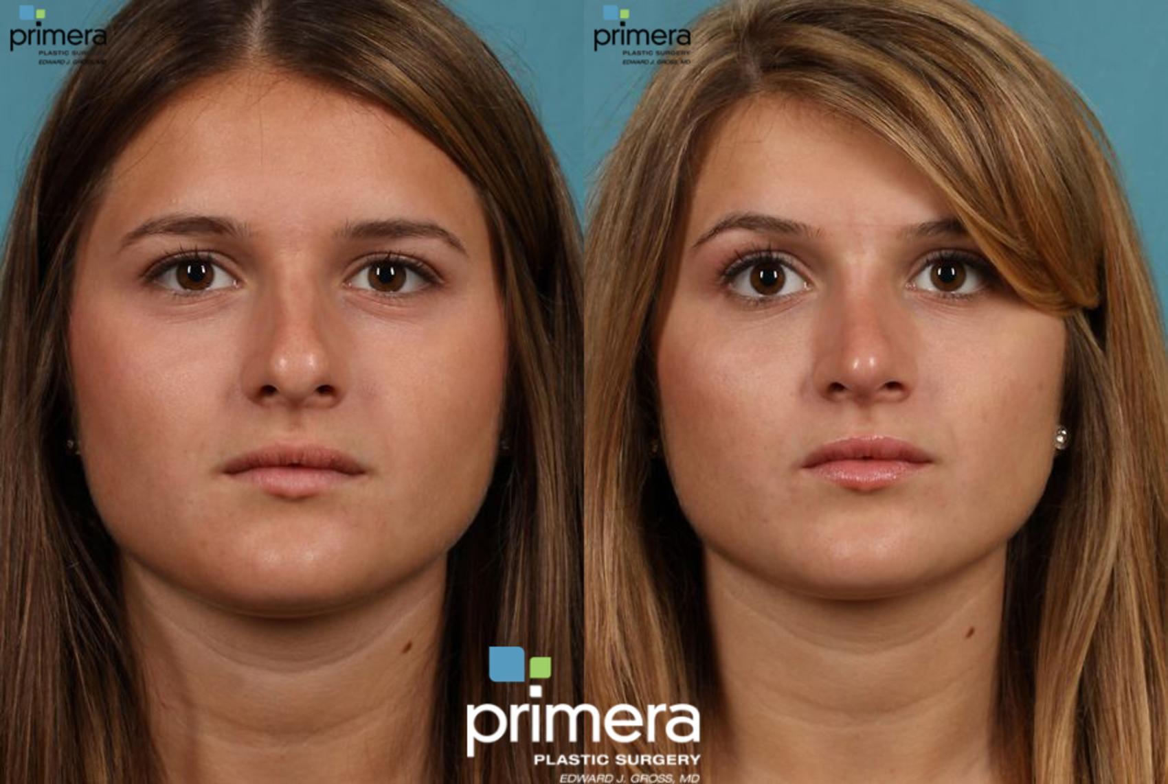 Rhinoplasty Before After Photos Patient 9 Orlando Florida Primera Plastic Surgery