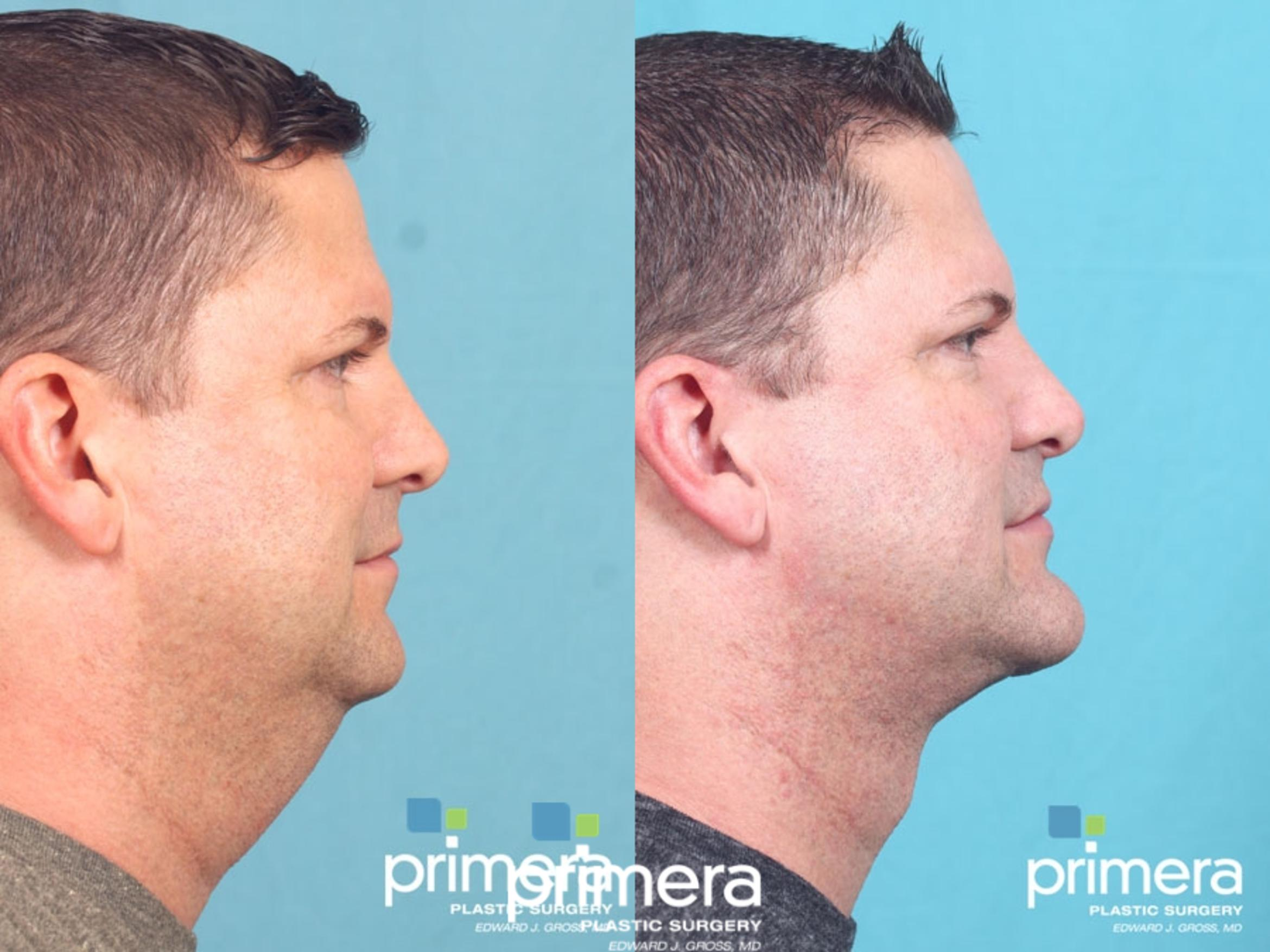 Neck Lift Before & After Photo | Orlando, Florida | Primera Plastic Surgery