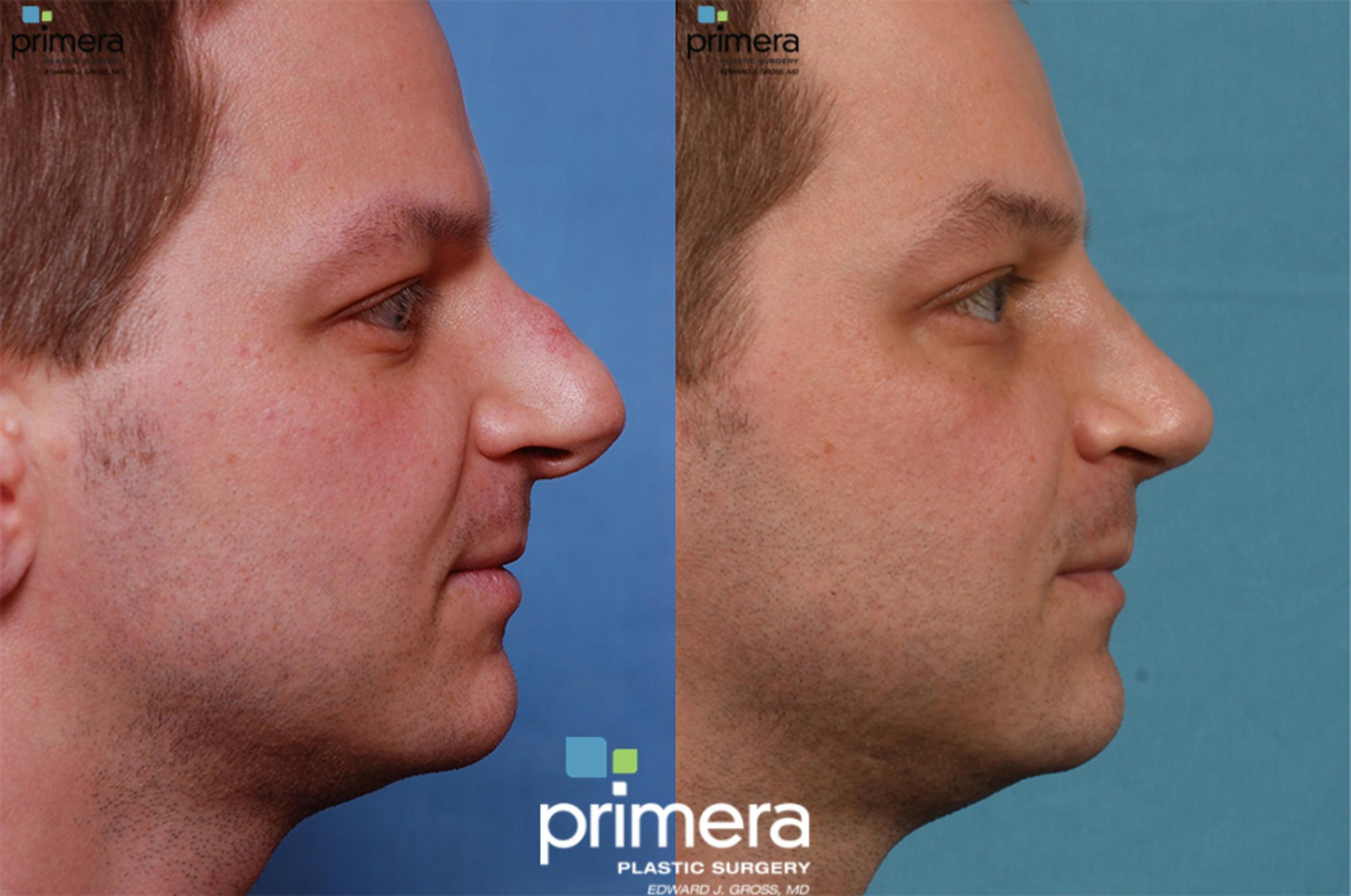 Surgery for Men Before & After Photo | Orlando, Florida | Primera Plastic Surgery