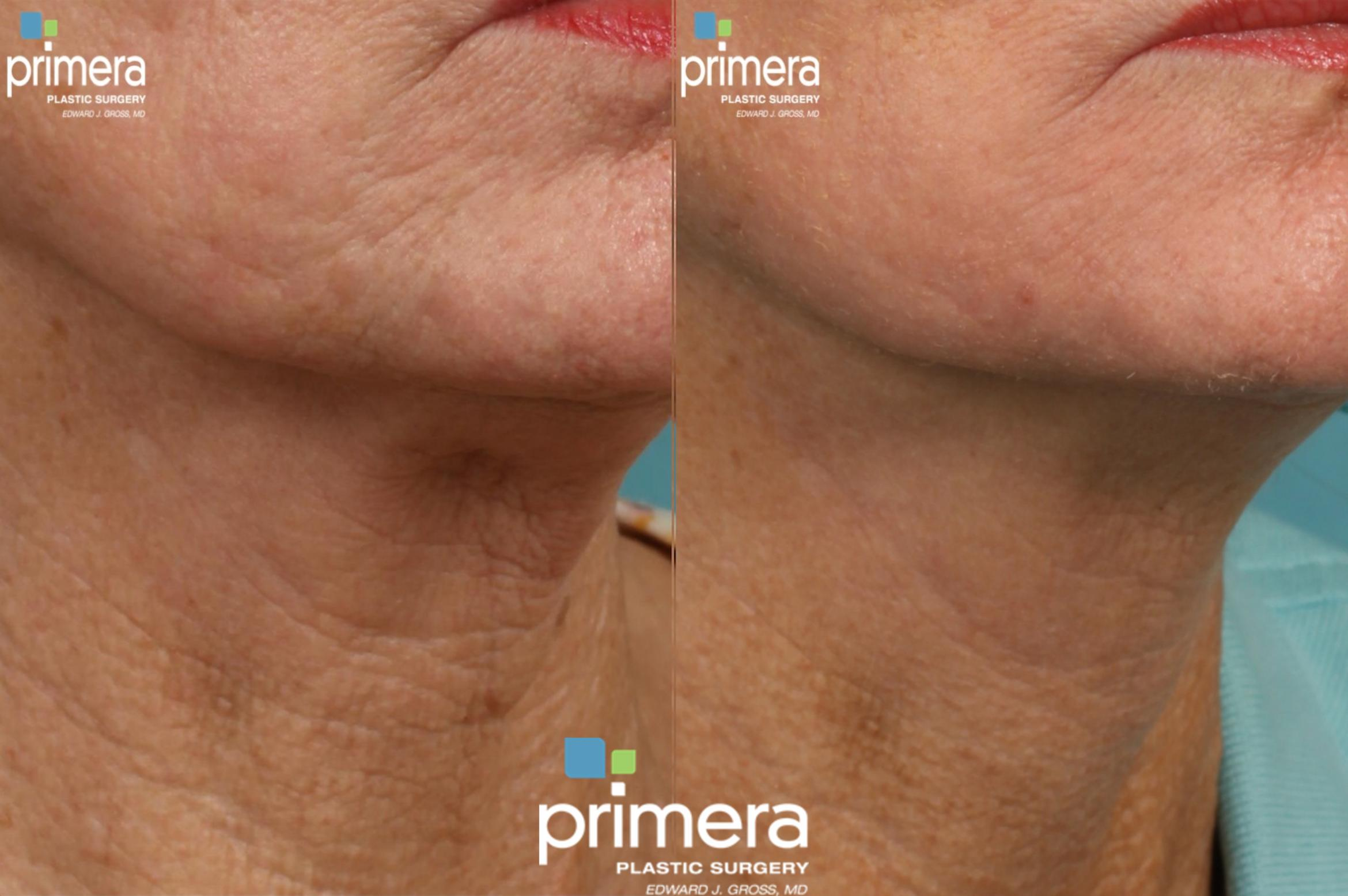Ultherapy® Before & After Photo | Orlando, Florida | Primera Plastic Surgery