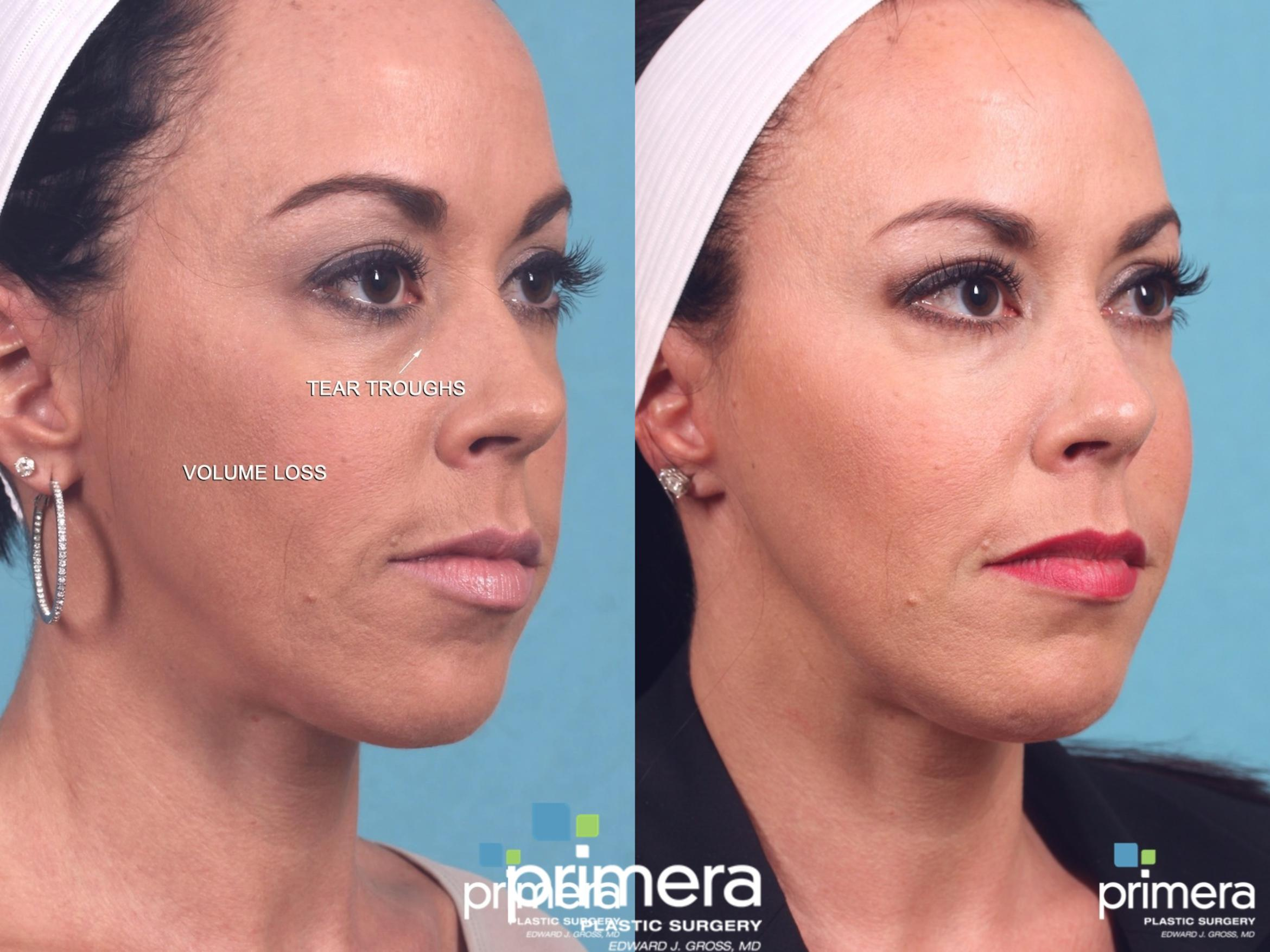 Sculptra® Before & After Photo | Orlando, Florida | Primera Plastic Surgery