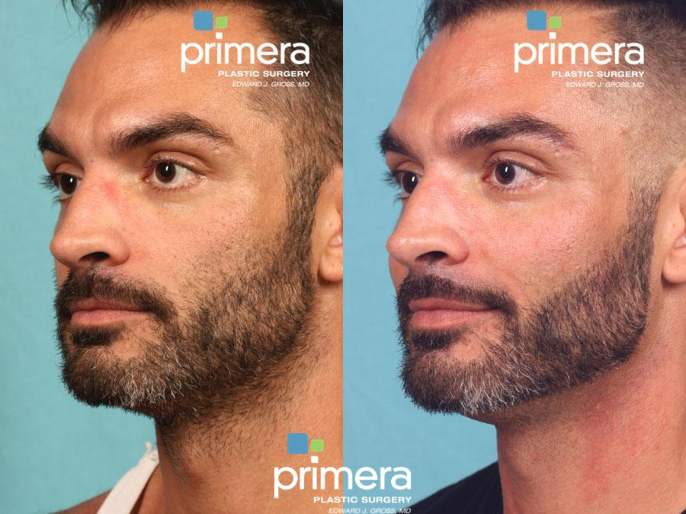 VOLUMA® Before & After Photo | Orlando, Florida | Primera Plastic Surgery