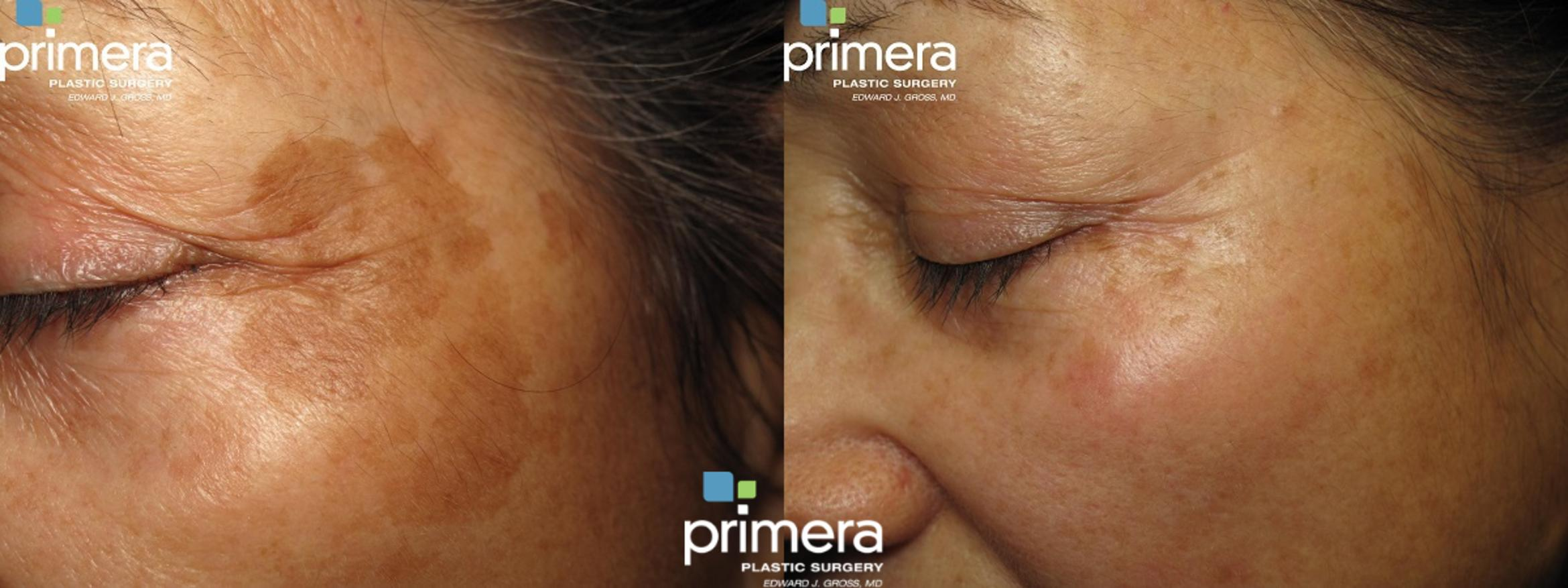 YAG Laser Before & After Photo | Orlando, Florida | Primera Plastic Surgery